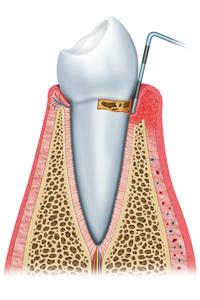Initial Periodontitis