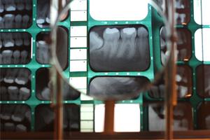 X-ray Slides