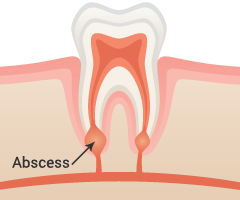 Abscess Removal