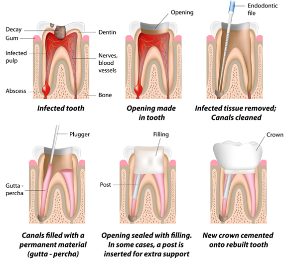 Chart - Root Canal Process